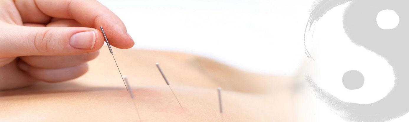 kann akupunktur schaden